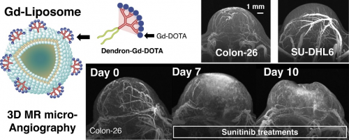 photo of The Gd-liposome with a cryogenic RF coil achieved 50-μm isotropic MR angiography with clear visualization of tumor micro-vessel structure and revealed differences in the vascular structures between Colon26- and SU-DHL6-tumor models