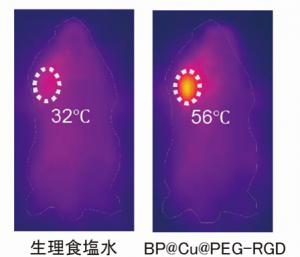 生理食塩水またはBP@Cu@PEG-RGDを投与した担癌マウスに、近赤外レーザーを2分間照射した後の近赤外画像