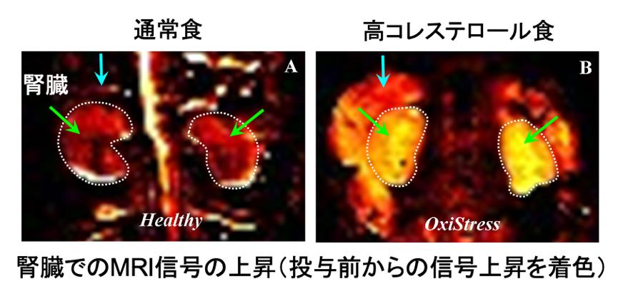 図5.量子センサーを投与して撮像したマウスの腎臓のMRI画像