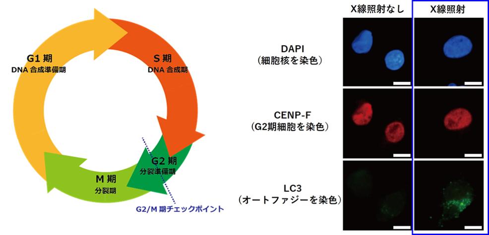 X線照射したヒト膵がん細胞におけるオートファジーの誘導