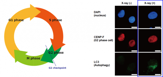 Cell cycle and autophagy induction after X-ray irradiation in human pancreatic cancer cells (MIA PaCa-2)