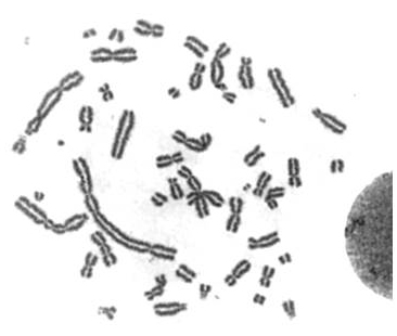 Chromosome aberrations induced by high-dose (5 Gy)