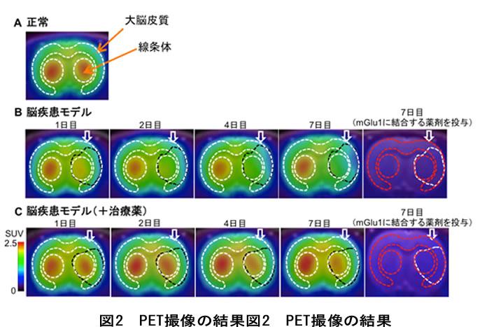 PETを用いて神経細胞のダメージを画像化することに成功